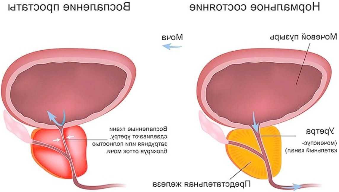 Первые признаки простатита у мужчин: симптомы и лечение начальной стадии