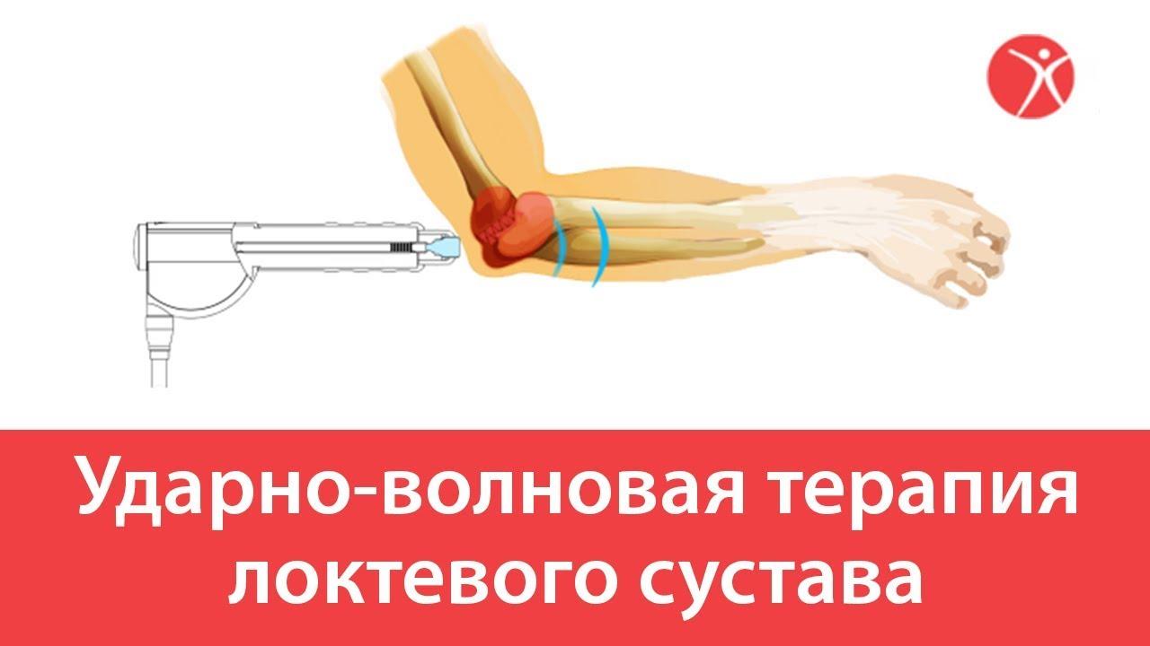 Метод ударно-волновой терапии для лечения эректильной дисфункции: отзывы, исследования, ограничения