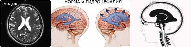 Наружная гидроцефалия головного мозга: что это такое, признаки и лечение