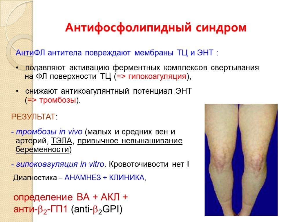 Антифосфолипидный синдром и беременность: анализы на афс, клинические рекомендации