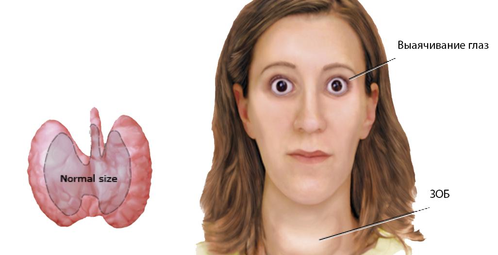 Тиреотоксикоз — симптомы и лечение, последствия заболевания