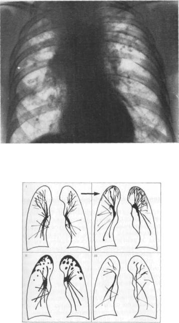 Пневмосклероз легких – что это такое, чем опасен недуг, и как его лечить?