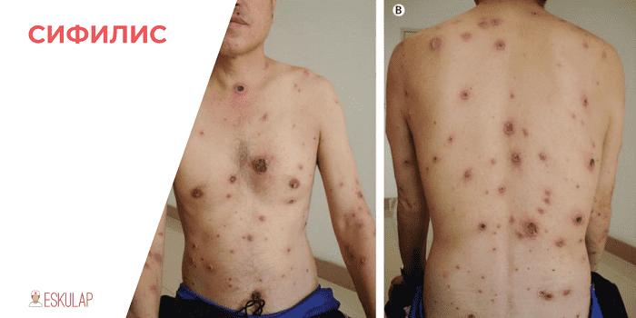 Латентный или скрытый сифилис: симптомы, диагностика, лечение