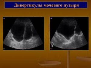 Дивертикул мочевого пузыря (псевдодивертикул): причины, как проявляется, диагностика и лечение