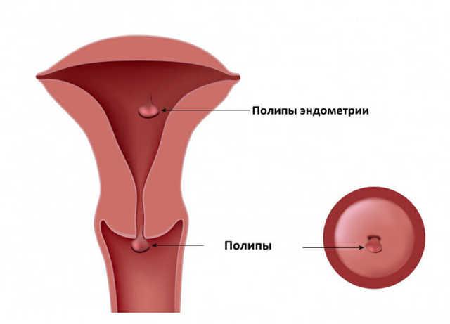 Чем грозит для здоровья женщины полип эндометрия в матке и как его лечить + чем он опасен при беременности