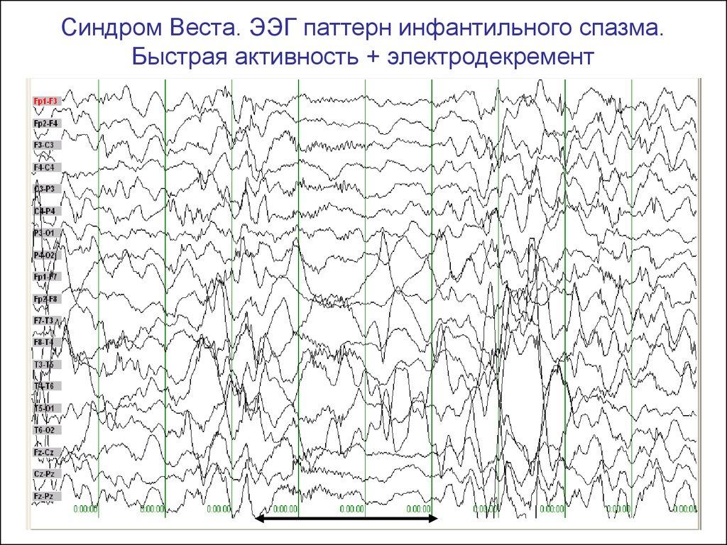 Ээг головного мозга: расшифровка показателей, норма и нарушения