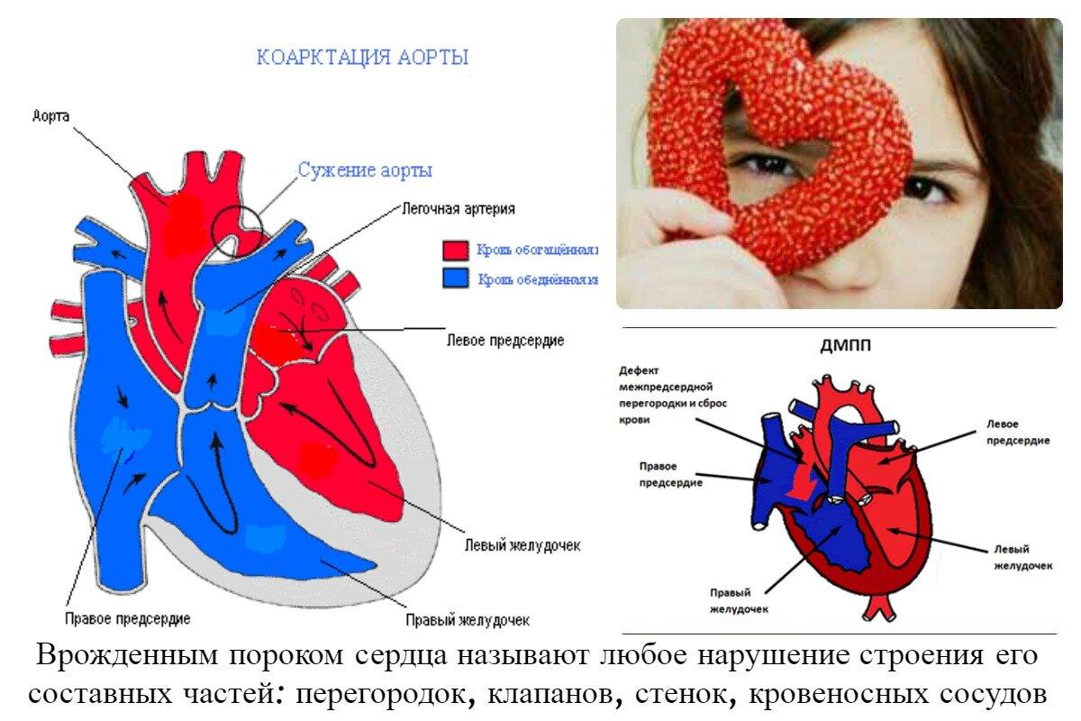 Приобретенный порок сердца: что это такое и как его лечить