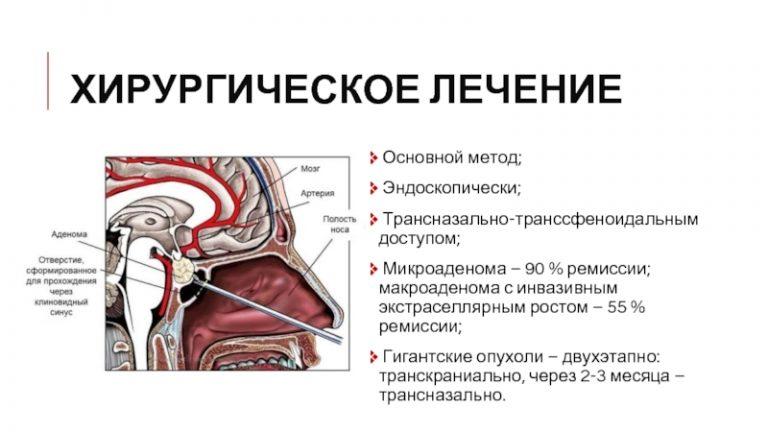 Аденома гипофиза: симптомы у женщин и мужчин, лечение, прогноз