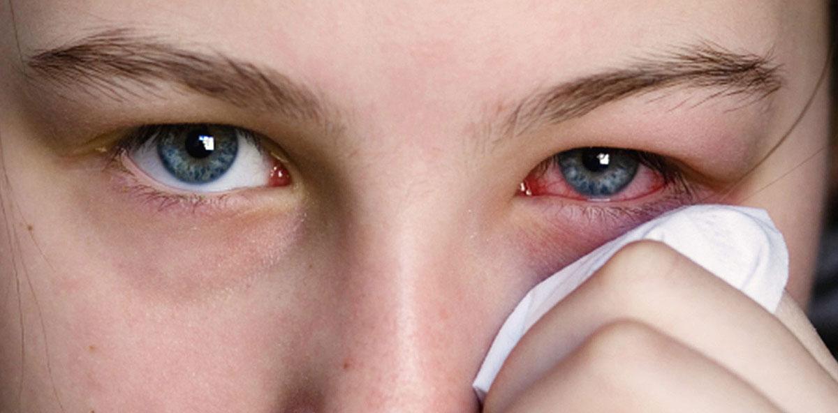 Иктеричность склер - что это такое: причины пожелтения глаз