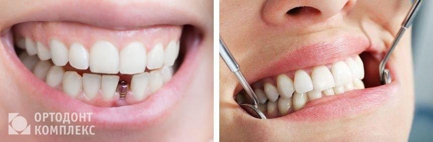 Какие зубные протезы лучше ставить, обзор цен