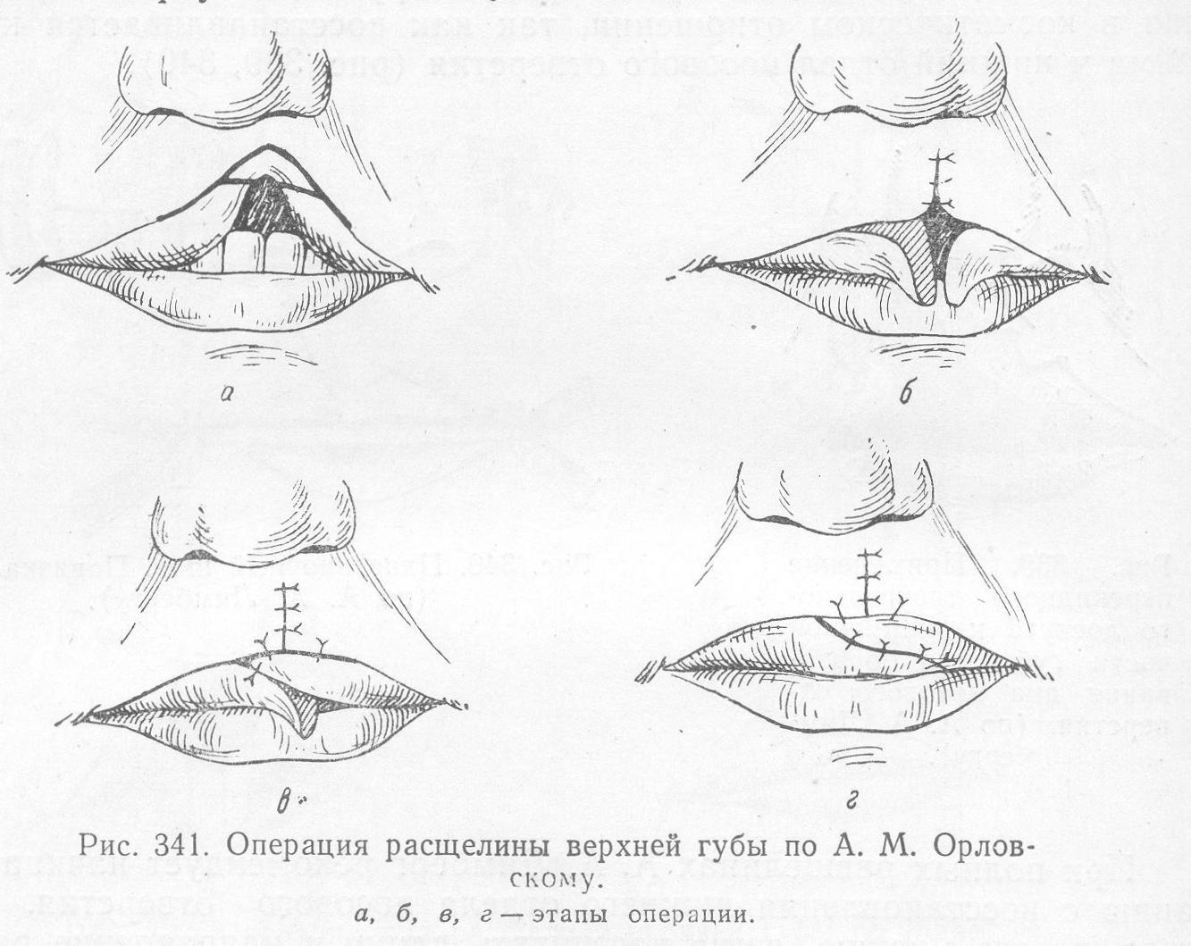 Заячья губа и волчья пасть: причины и способы борьбы с недугом
