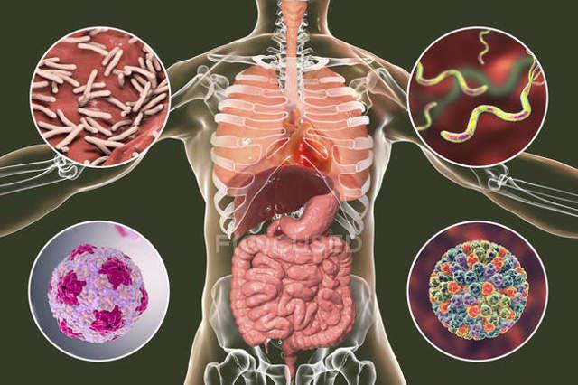 Хантавирус в россии!!! симптомы, диагностика, лечение