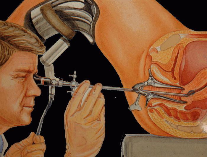 Гистерорезектоскопия: как проводится процедура