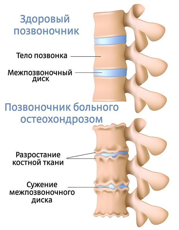 Деформирующий спондилез грудного отдела позвоночника: симптомы и лечение спондилопатии