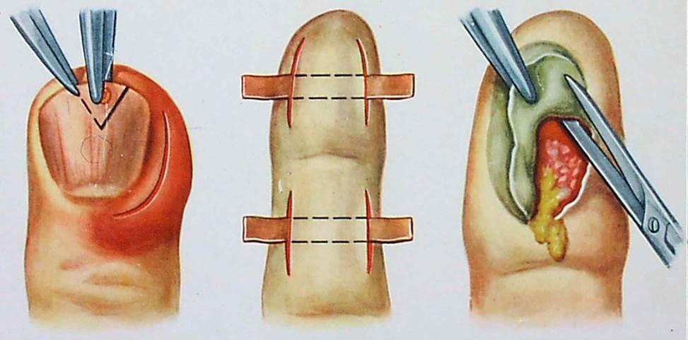 Панариций. причины, симптомы, лечение заболевания. панариций подногтевой, пальцев рук и ног.