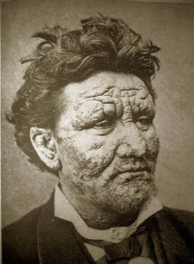 Болезни в средних веках: чума, черная смерть, проказа