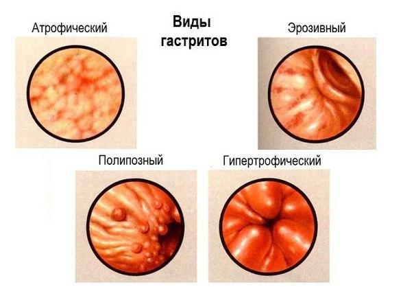 Симптомы и лечение эритематозной, эрозивной, застойной гастропатии