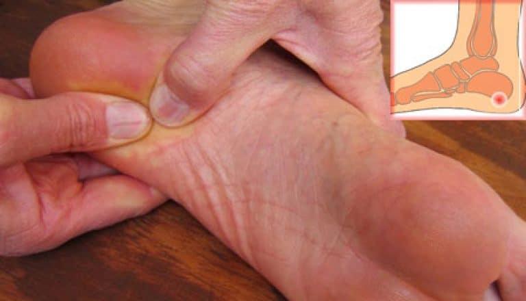 Пяточная шпора фото симптомы и лечение