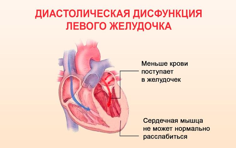 Диастолическая дисфункция левого желудочка 1 типа: что это такое, как лечить?