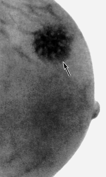 Виды маммографии молочных желез. как проводят, преимущества, результаты