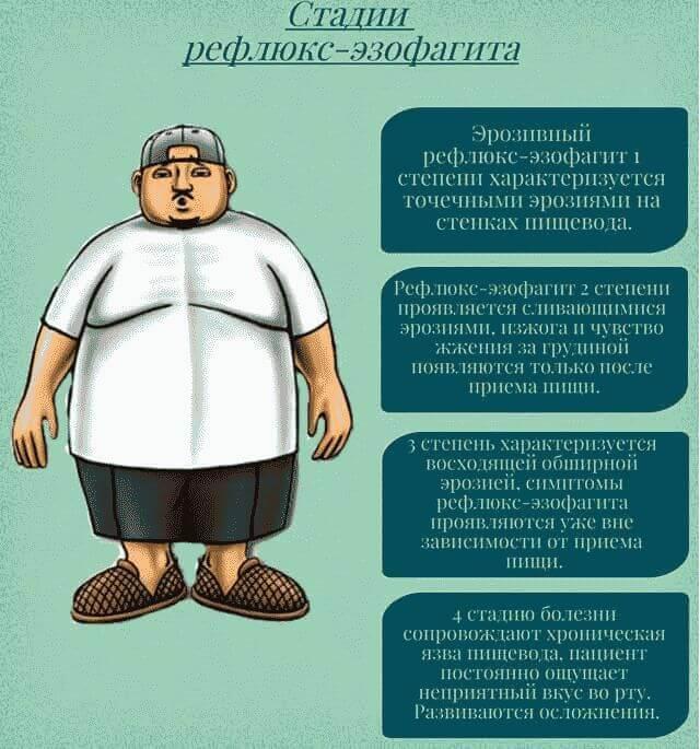 Рефлюкс эзофагит — симптомы, причины и лечение. как лечить рефлюкс эзофагит народными средствами? диета при рефлюкс эзофагите