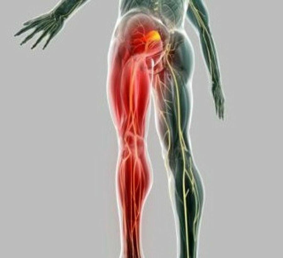 Люмбаго. симптомы, причины, диагностика и лечение заболевания. как лечить люмбаго - лечение народными средствами, гимнастика, упражнения, массаж?