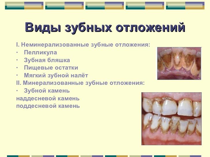Почему появляются камни на зубах, причины появления, как они выглядят