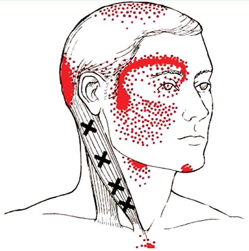 Что такое цервикокраниалгия, причины и симптомы, лечение + видео