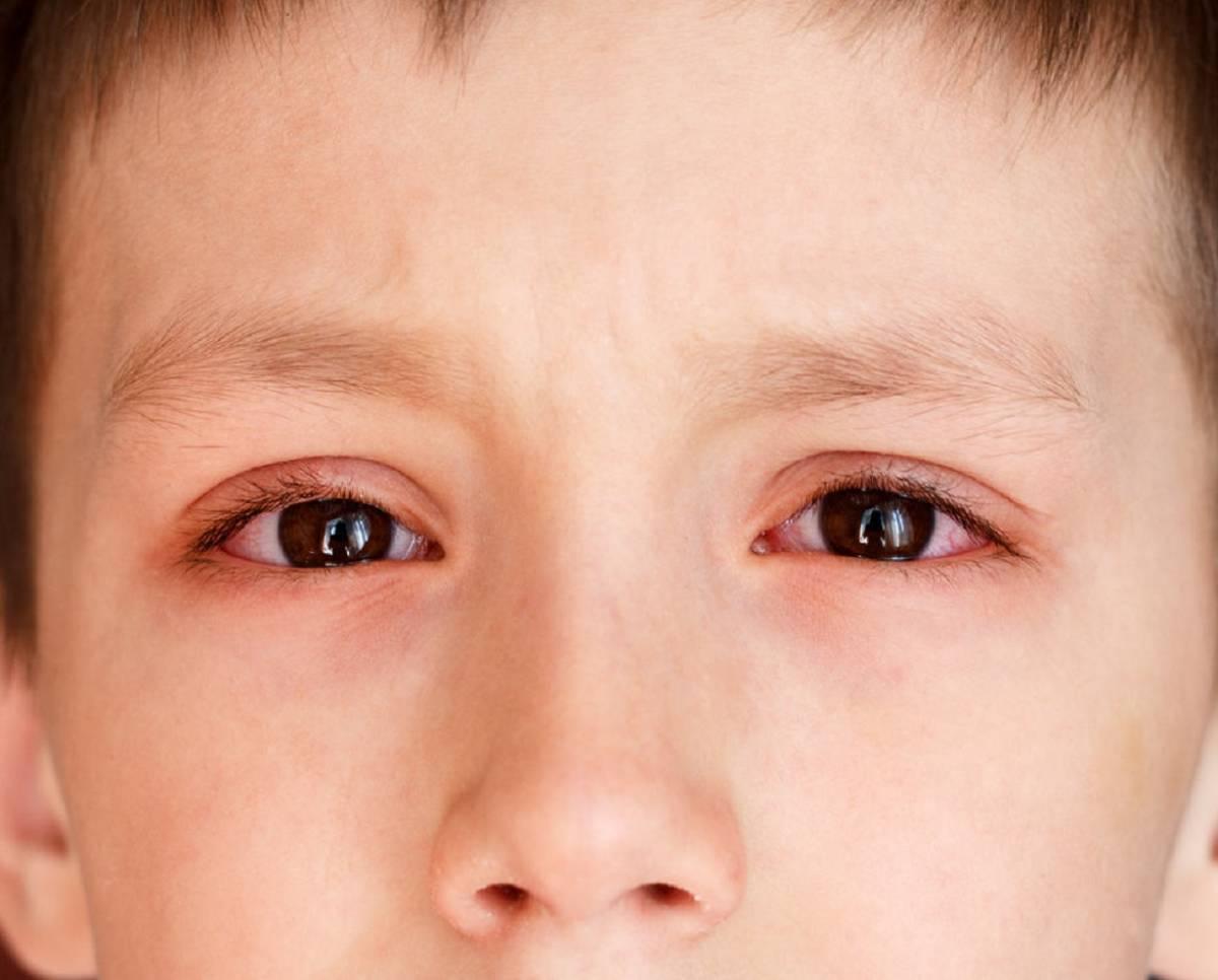 Конъюнктивит глаз: симптомы, причины и лечение у взрослых и детей