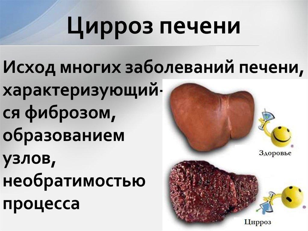 Цирроз печени - симптомы и лечение. признаки и стадии цирроза печени, причины заболевания