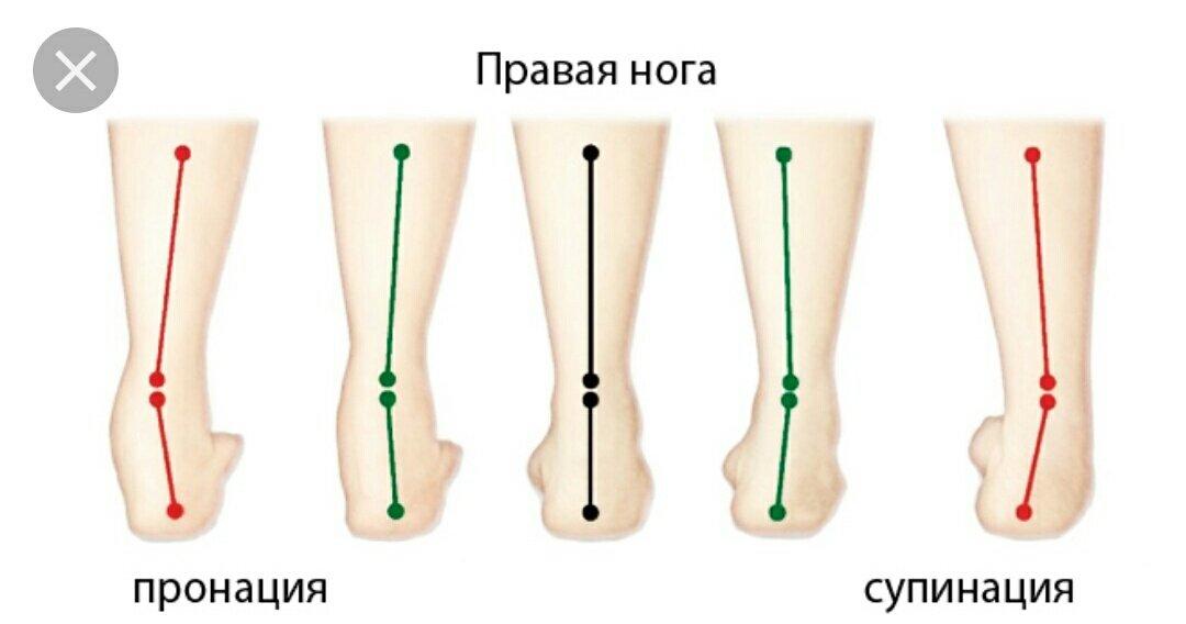 Пронация и супинация стопы: что это такое и как определить