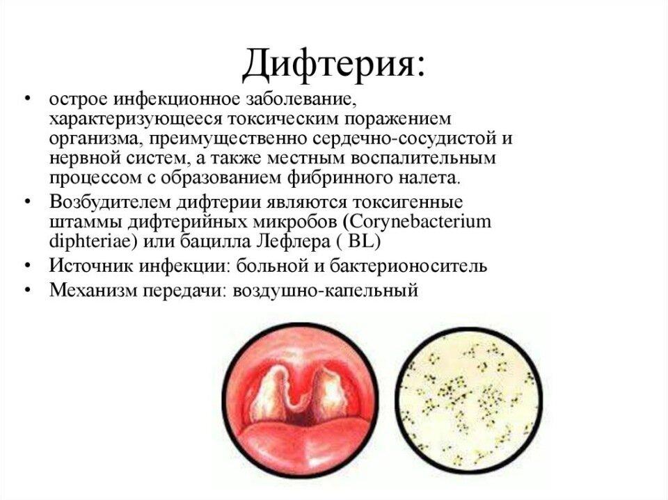 Дифтерия - симптомы у детей и взрослых, первые проявления, диагностика и лечение