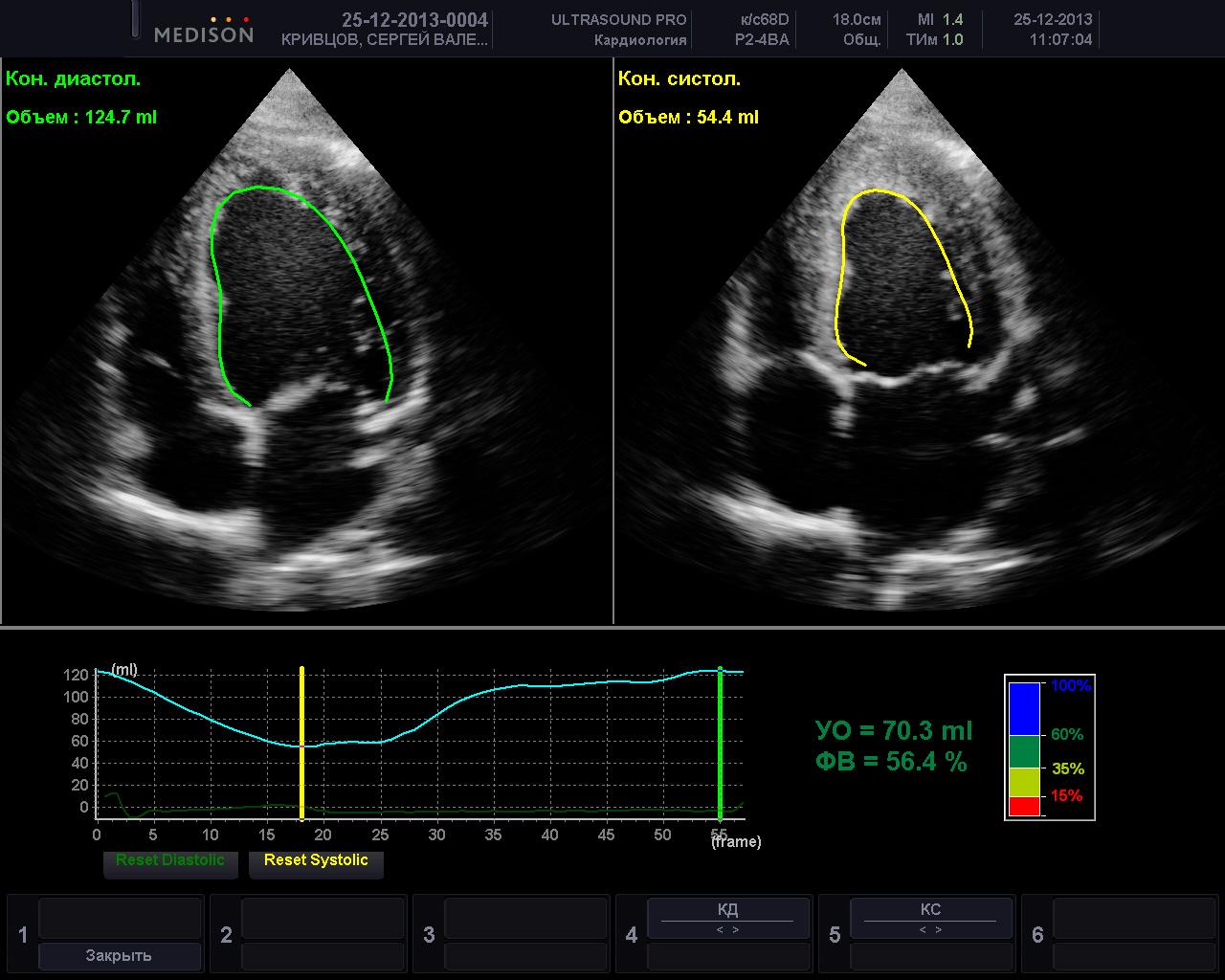Узи сердца – что показывает? эхо-кг (эхокардиография сердца) – как делают?