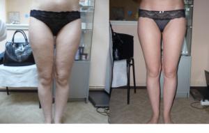 Прессотерапия – отзывы, фото до и после