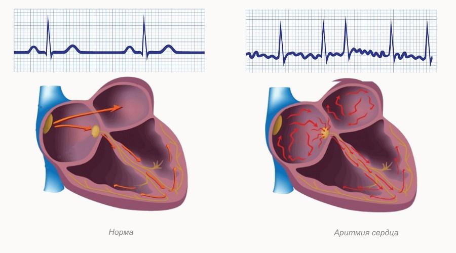 Определение основных понятий в интенсивной терапии - кардиолог - сайт о заболеваниях сердца и сосудов