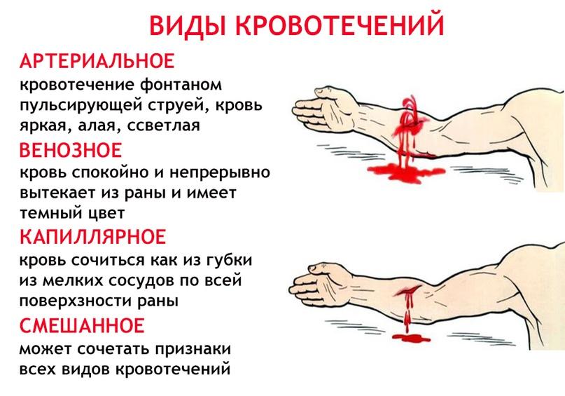 Кровотечение — википедия