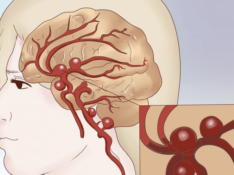 Аневризма головного мозга - тяжелое заболевание артерий головы