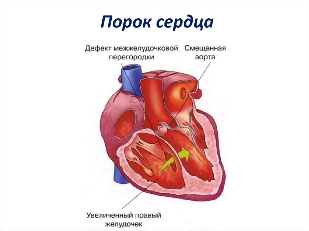 Что такое порок сердца: симптомы у взрослых - причины, признаки и лечение