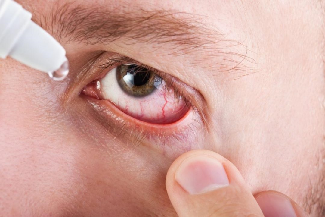 Причины конъюнктивита глаз у взрослых: лечение, факторы риска, провоцирующие заболевания