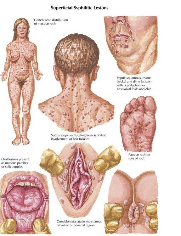 Как выглядит сифилис на разных стадиях: фото больных
