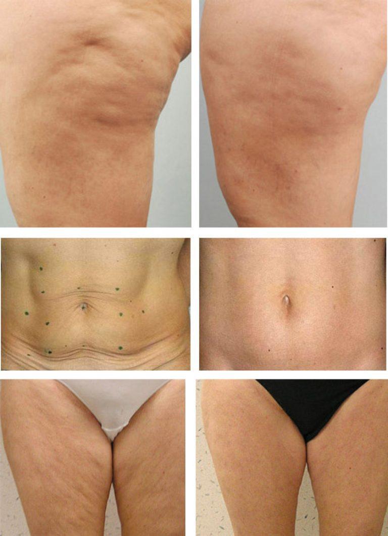 Липолитики для похудения - отзывы, фото до и после