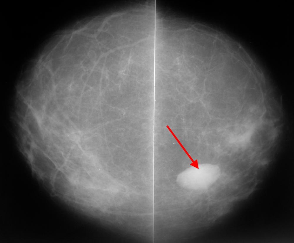Маммография: подробная инструкция в 12 ответах