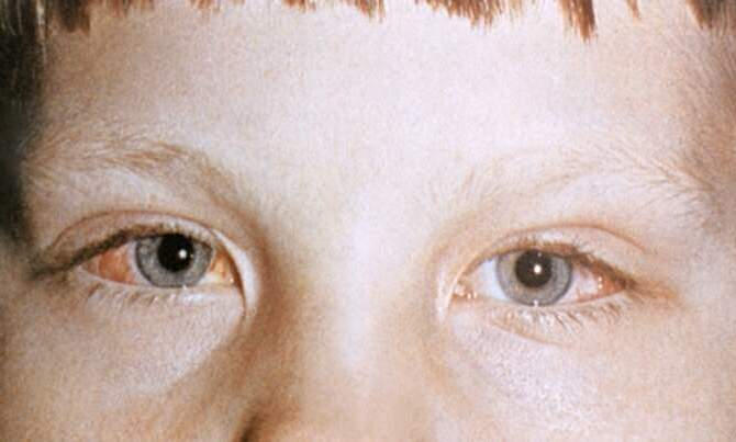 """Эпикантус: причины возникновения - """"здоровое око"""""""