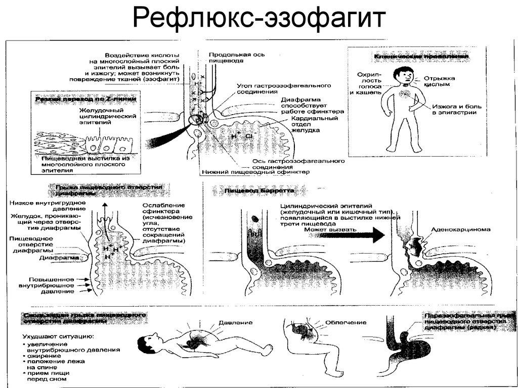Эзофагит - симптомы и лечение лекарствами и народными средствами