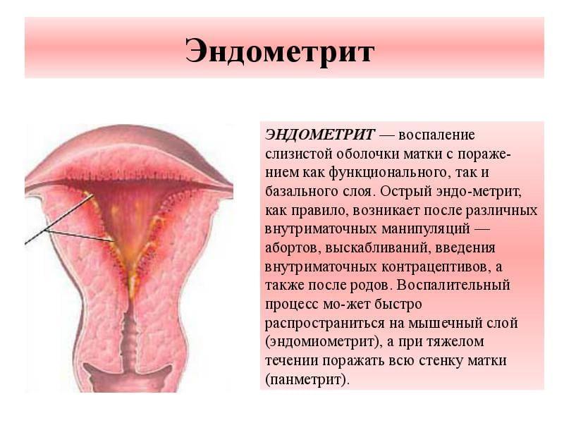 Эндометрит — что это такое? виды, основные симптомы и схемы лечения | здорова и красива