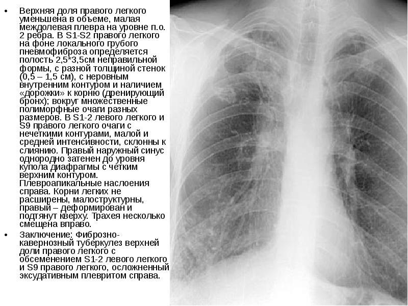 Пневмофиброз легких. лечение народными средствами - 20 рецептов!