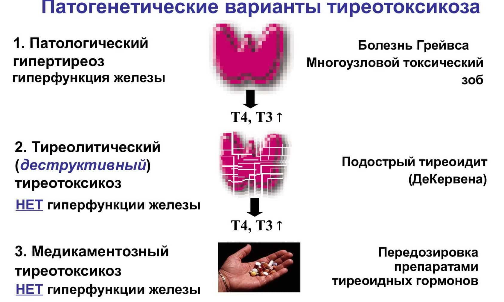 Тиреотоксикоз щитовидной железы: что это такое, симптомы, лечение