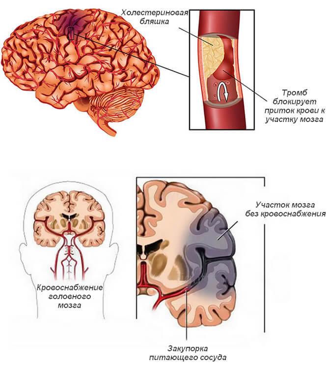 Инфаркт головного мозга: что это такое, симптомы, лечение, последствия