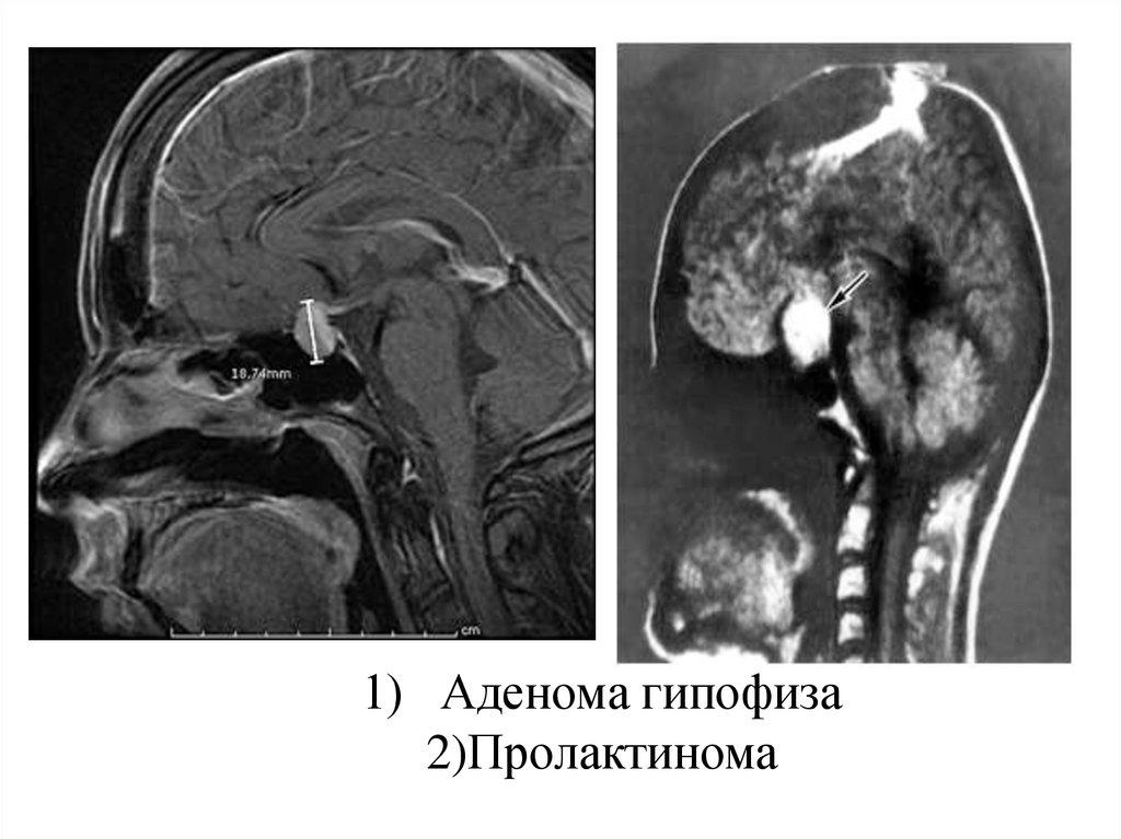 Аденома гипофиза: симптомы, причины и лечение