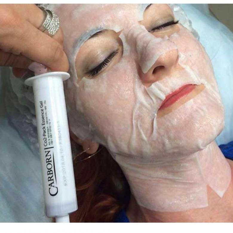 Неинвазивная карбокситерапия: что это такое, отзывы, цена, фото до и после, эффективность безинъекционной маски для лица, описание наборов — аравия, со2, baviphat и других